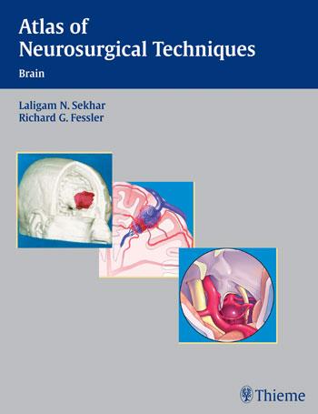 Atlas Các kỹ thuật Phẫu thuật Thần Kinh – Não
