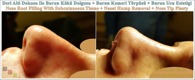 Nasal root filling with subcutaneous tissue - Nasal root filling with underskin tissue - Nose tip plasty - Limited nasal hump removal - Limited nasal hump reduction - Rhinoplasty without breaking the bone - Nose tip plasty in men Istanbul - Nose tip surgery in Istanbul - Nose tip plasty in Turkey - Nose tip plasty in women Istanbul
