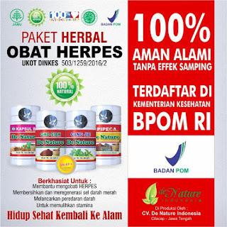 De Nature pengobatan herpes ampuh