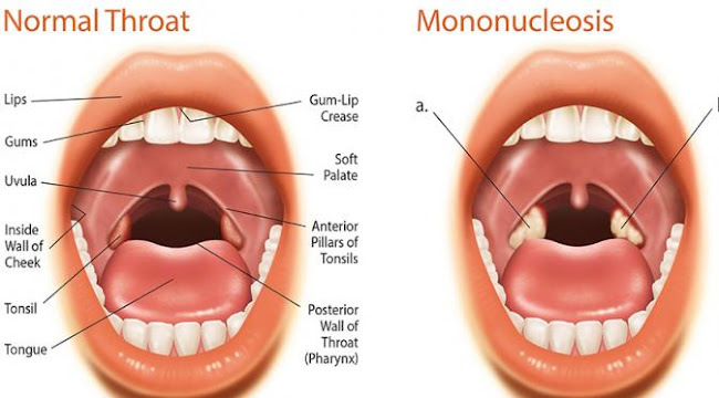 Cara Mengobati Mononucleosis Secara Alami