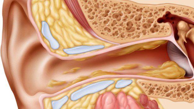 Jak naturalnie złagodzić ból ucha? Mój sprawdzony sposób