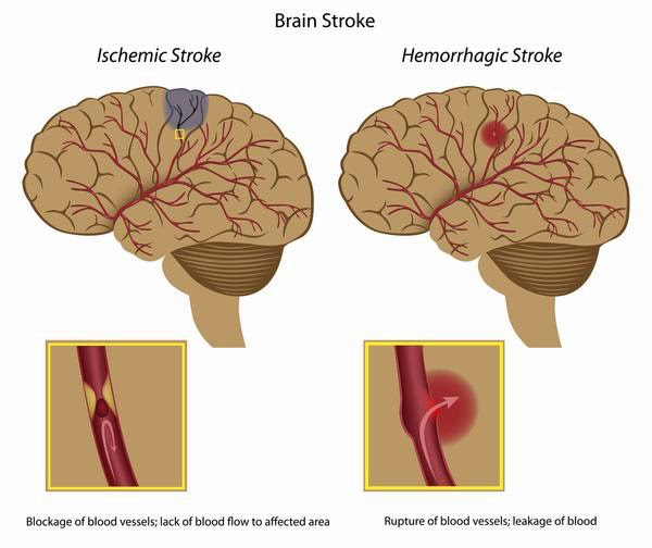 """Had a Dad"" Alzheimer's Blog: Stroke damage = vascular ..."