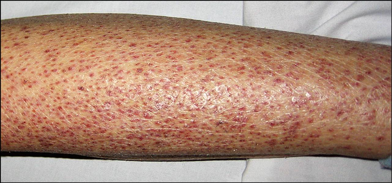 erupción de petequias causa diabetes emedicina