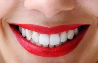 Perawatan Wajah, cara memutihkan gigi dengan cepat, cara memutihkan gigi yang kuning, cara memutihkan gigi secara alami, cara ampuh memutihkan gigi, tips cara memutihkan gigi, cara memutihkan gigi yang sudah kuning,