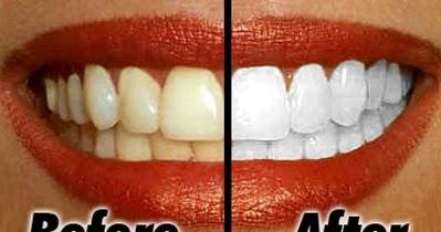 Cara Memutihkan Gigi Secara Alami Cara Tekno