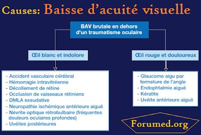 la baisse d'acuité visuelle (BAV)
