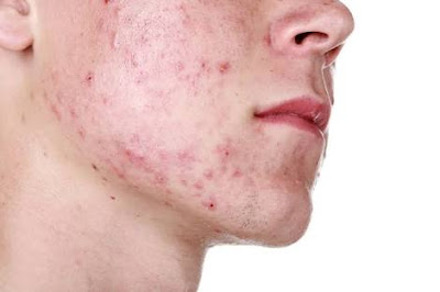 SIMPLE HOME REMEDIES THAT CURE PIMPLES(ACNE) - Ehow Lifestyle