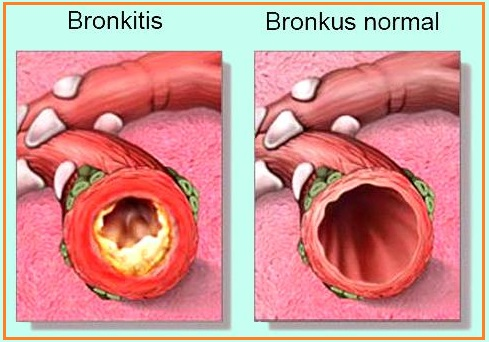a clinical description of the causes and treatment of bronchitis The treatment for copd (chronic obstructive pulmonary disease) is similar to that for chronic bronchitis: inhaled bronchodilators, inhaled or oral steroids, supplemental oxygen, annual flu vaccinations, and pneumococcal vaccinations.