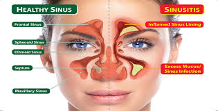 How to treat sinusitis with herbal medicines