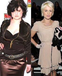 Kelly Osbourne Weight Loss - Celebrity PicturesKelly Osbourne Weight Loss Diet