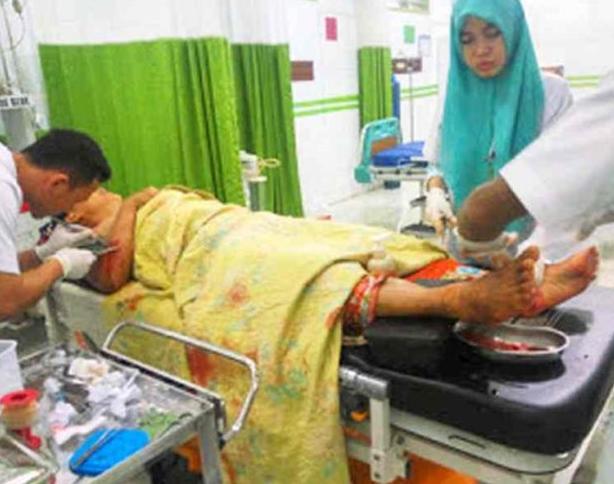Korban luka saat dirawat.