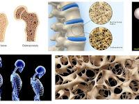 10 Daftar Makanan Terbaik Yang Dapat Mencegah osteoporosis pada manula