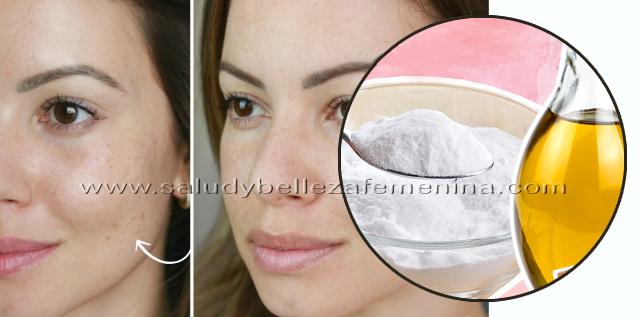 Elimina manchas, arrugas y acné con microdermoabrasión casera, la microdermoabrasión casera  es un tratamiento muy parecido a un peeling pero menos agresivo para la piel, y, lo que hace es renovar el cutis, eliminar cicatrices, disminuir manchas, cerrar los poros y eliminar las células muertas que hacen que la piel se vea sin vida y cansada.