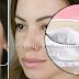 Elimina manchas, arrugas y acné con microdermoabrasión  casera