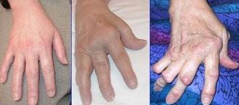 wypadanie włosów a reumatoidalne zapalenie stawów