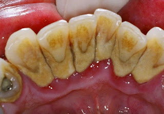 calculus on teeth inflamed gums in periodontitis - gum disease