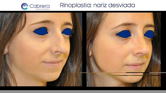 Caso antes y después 2 Rinoplastia Córdoba