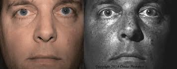 Efek wajah terkena sinar UV