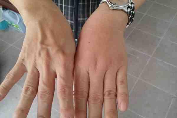 خلطه لتسمين اليدين مضمونه