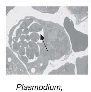 gambar plasmodium