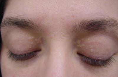 Image result for kutil di muka