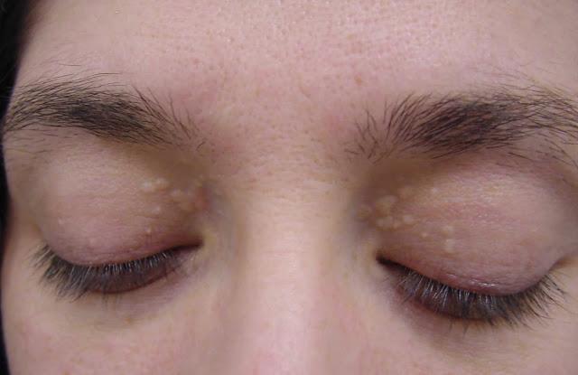 cara hilangkan bintik kolestrol bawah mata