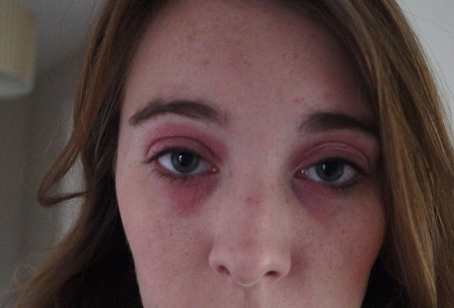 Red and dry skin around eyes caused by eye eczema