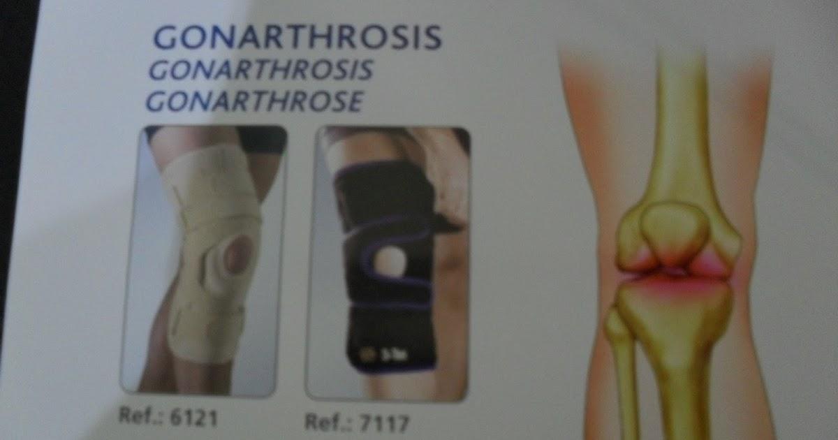 Rodilleras para gonartrosis disponibles en ortopedia for W de porter ortopedia