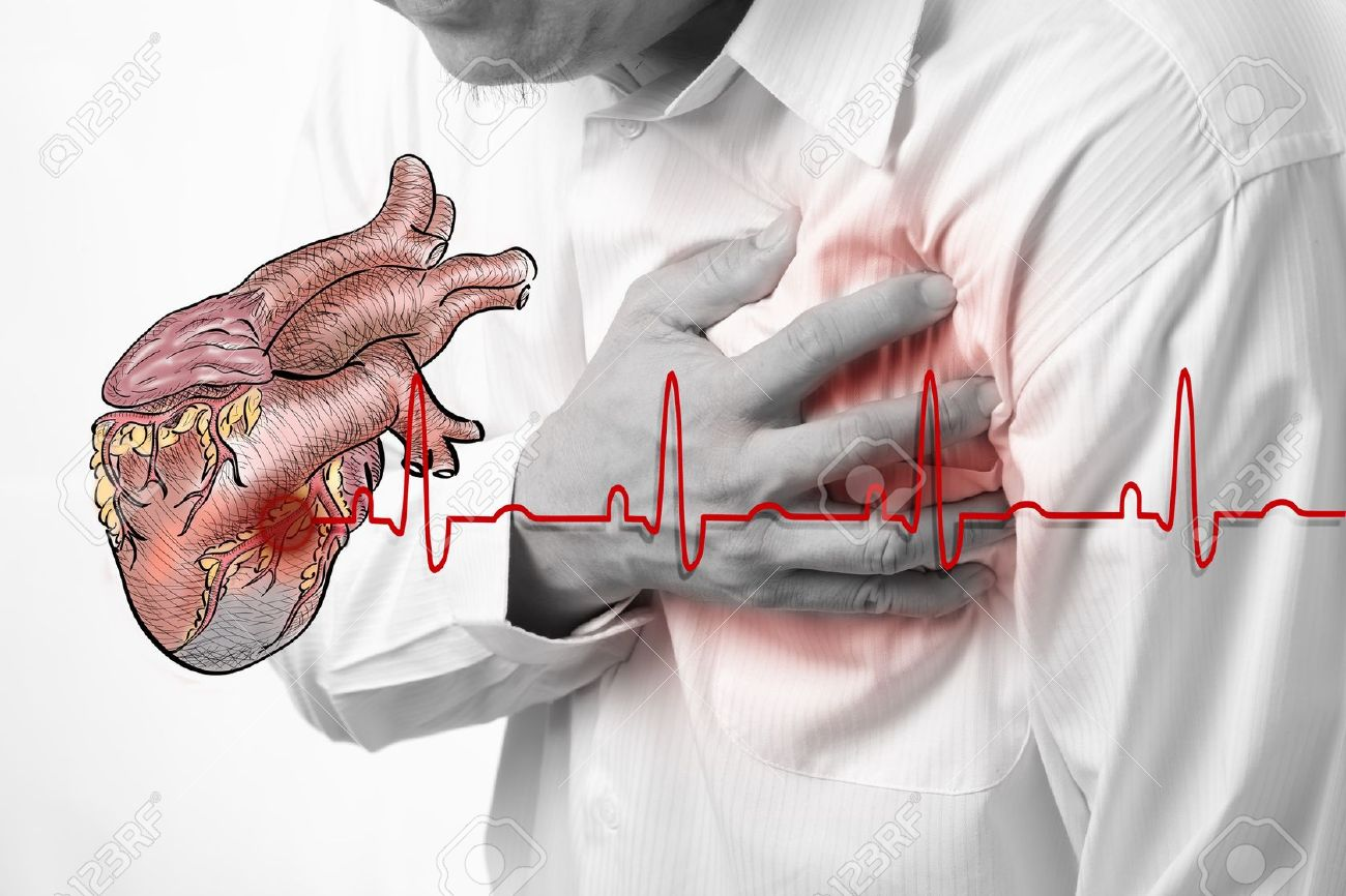 Congestive heart failure is a condition in which the heart cant pump enough blood and oxygen to the bodys tissues Symptoms are cough shortness of