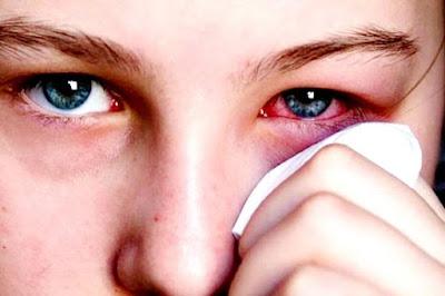 Những dấu hiệu biểu hiện mắt của bạn cần thăm khám bác sĩ nhanh chóng-https://songvuikhoemoingay24h.blogspot.com/