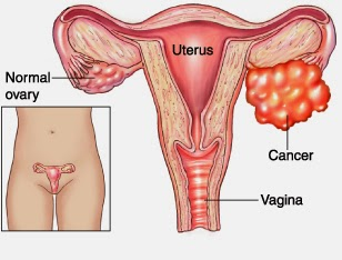 """Ł¥åº·ä½""""检网 Health Net Warning Signs Of Ovarian Cancer You Shouldn T Ignore"""