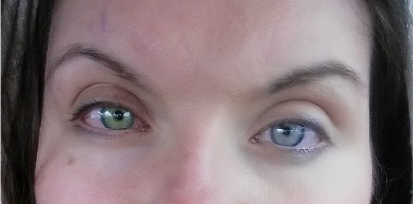 Did anyone else's eyes change color like this after crosslinking for keratoconus?