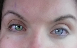 Eyes Changed Color After Corneal Crosslinking for Keratoconus 👀