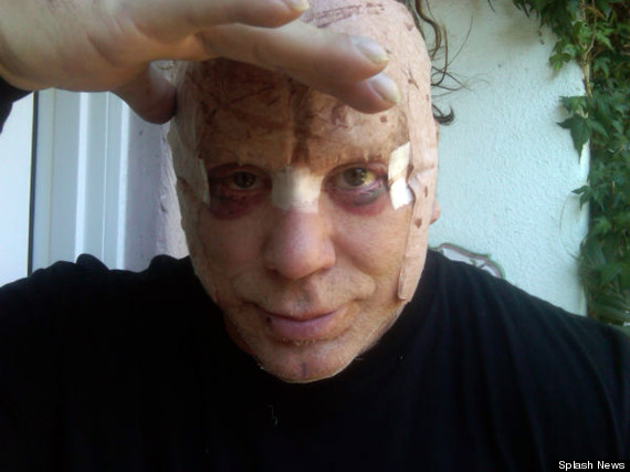 Chatter Busy: Mickey Rourke's Wrecked Face Full Of Scars