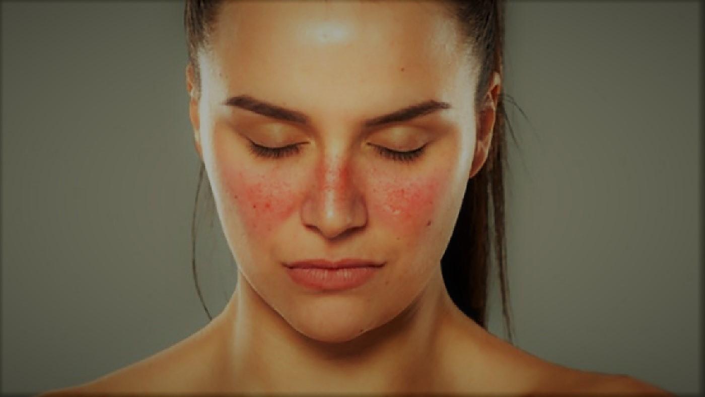 Gejala dan Penyebab Penyakit Lupus