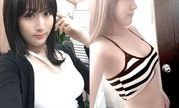 짱이뻐! - Had No Confidence Before Breast Plastic Surgery