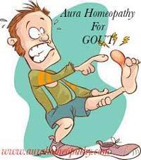 यूरिक एसिड के लिए शीर्ष 10 होम्योपैथिक चिकित्सा - गठिया उपचार