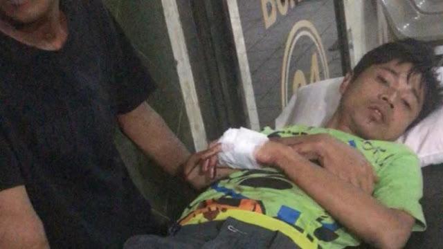 Adik Vicky Prasetyo Terluka Dibacok Begal