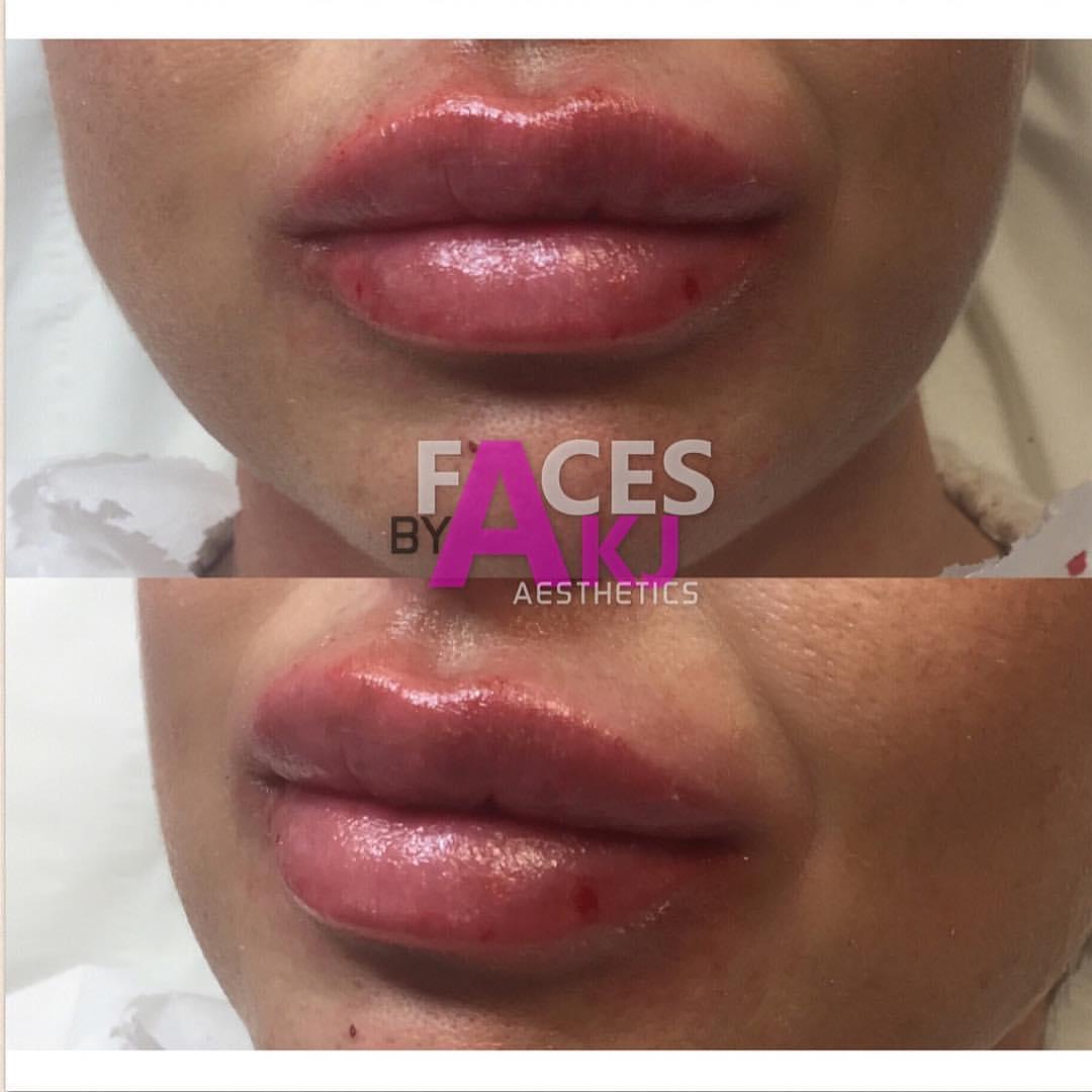 claudia wright: intraline lip fillers |facesakj