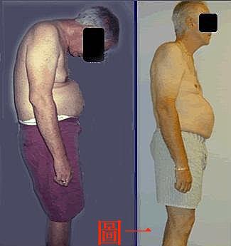 脊椎炎治療