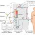 Assistência de enfermagem na Hemodiálise
