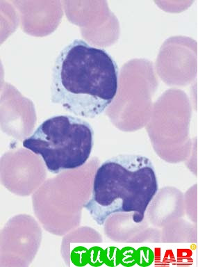 Severe lymphatic stress reaction with granulated lymphocytes.