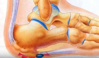 Болит сустав ноги у стопы к какому врачу первая помощь при растяжении сустава