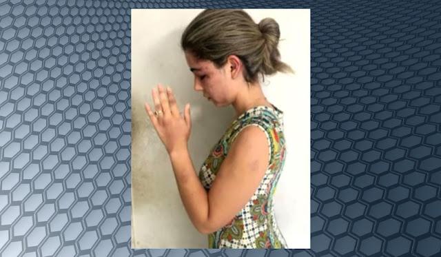 OAB-MA divulga nota de repúdio após espancamento de advogada
