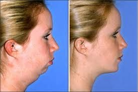 How To Get Rid Of A Double Chin Fast With Facelift Exercises: 2017