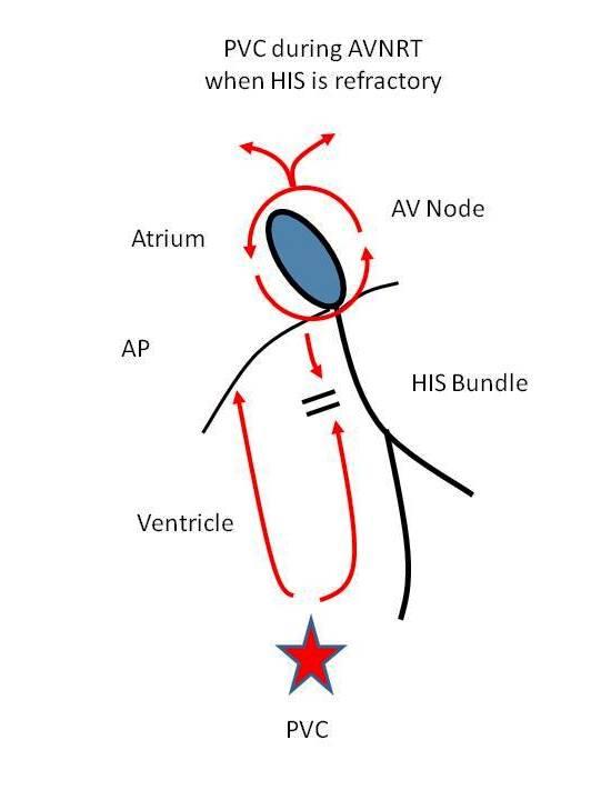 ecg rhythms  the effect of a spontaneous pvc in a supraventricular tachycardia  it u0026 39 s significance