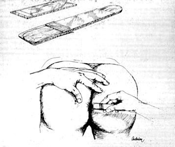 Pinworm Test-Cellophane (Cellulose Scotch) Tape ...