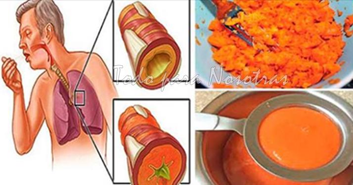 Las flemas de natural los remedio pulmones para sacar