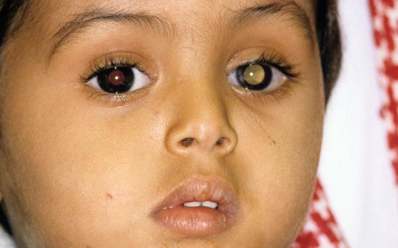 Pengobatan Retinoblastoma Yang Herbal