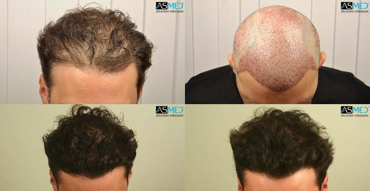 Where To Buy Avodart In Ireland Online Avodart Vs Propecia Hair Loss